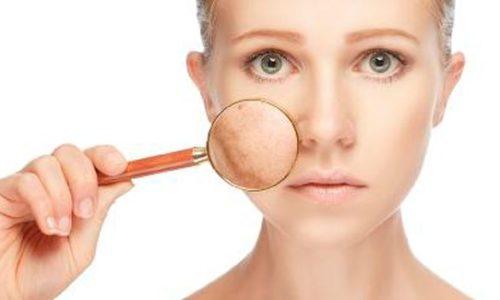 Cum tratezi in profunzime acneea – Experienta mea; Part 1