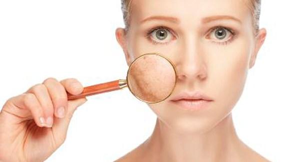 cum tratezi in profunzime acneea
