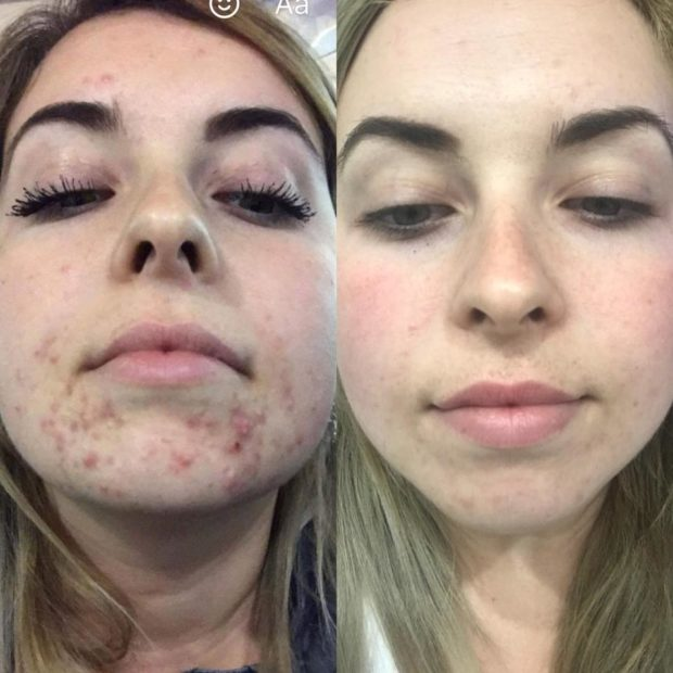 poze before and after acne out